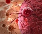 Метастазы при раке шейки матки