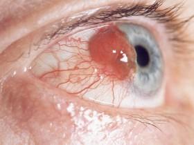 Рак глаза: фото 1