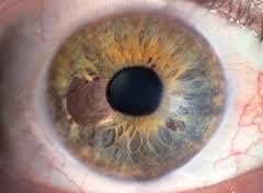 Рак глаза: фото 3