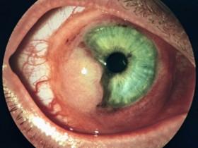 Рак глаза: фото 4
