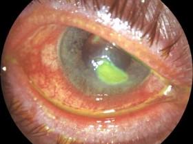 Рак глаза: фото 5