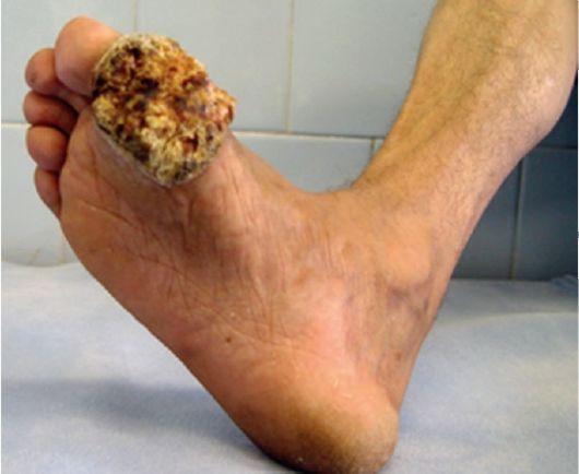 Рак кожи: базалиома, карциома
