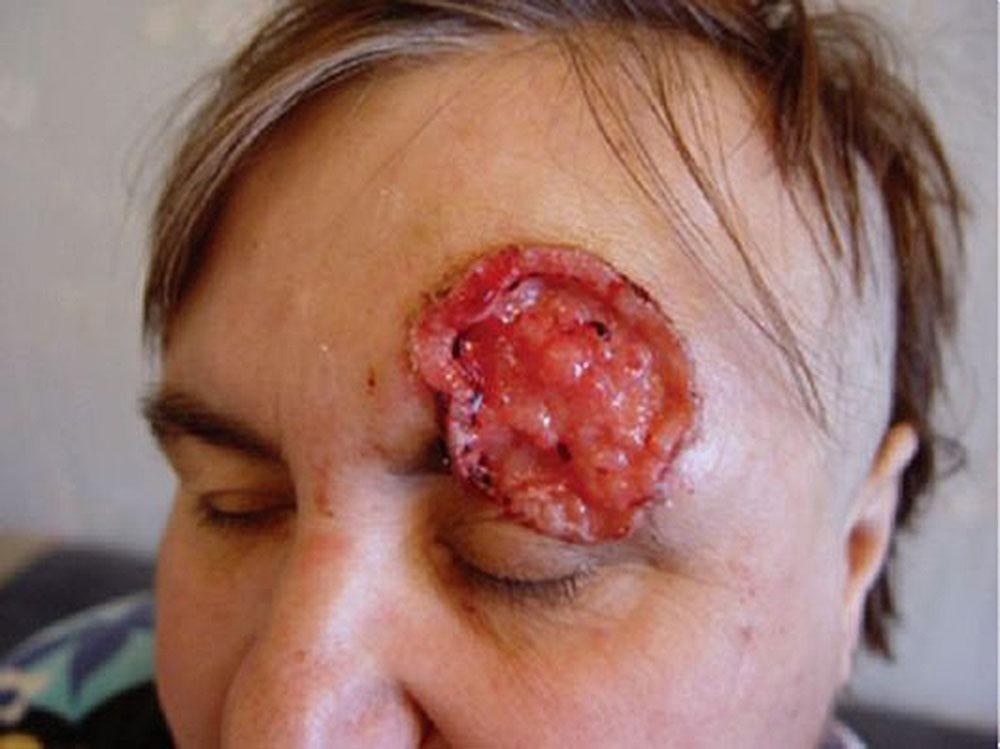 Рак кожи: симптомы