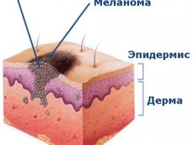 Симптомы и признаки рака кожи