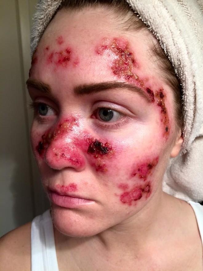 Рак кожи: проявления