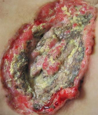 Рак кожи: лечение