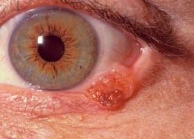 Рак глаза: симптомы