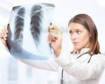 Испытано вещество, способное лишать опухоль лёгкого кровотока