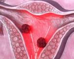 Плоскоклеточный рак шейки матки
