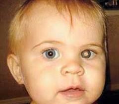 Рак сетчатки глаза