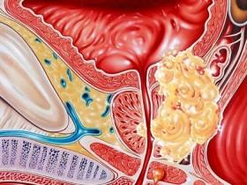 Рак простаты: белок блокирующий опухоль