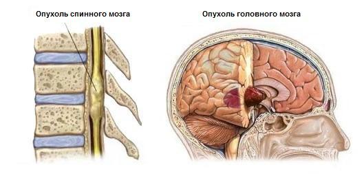 Классификация опухолей головного и спинного мозга