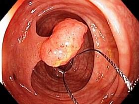 Колоректальный рак: симптомы