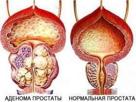 Лечение рака простаты