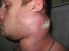 Лимфосаркома: симптомы