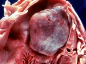 Миксома сердца первые симптомы