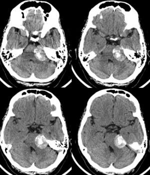 Невринома слухового нерва представлена на снимках КТ