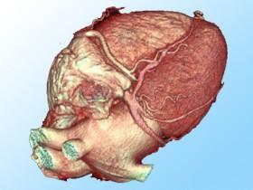 Опухоль сердца: симптомы