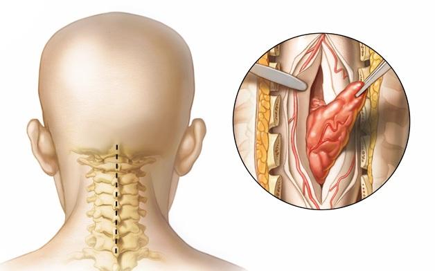 опухоль в спинном позвонке