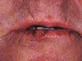 Плоскоклеточный рак губы