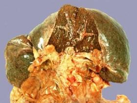 Рак желчного пузыря: проростание