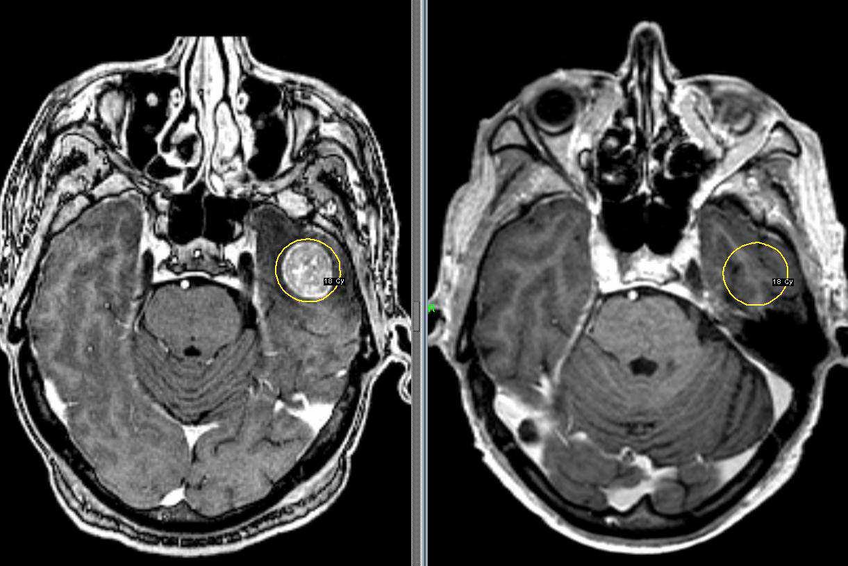 Снимок МРТ при раке головного мозга