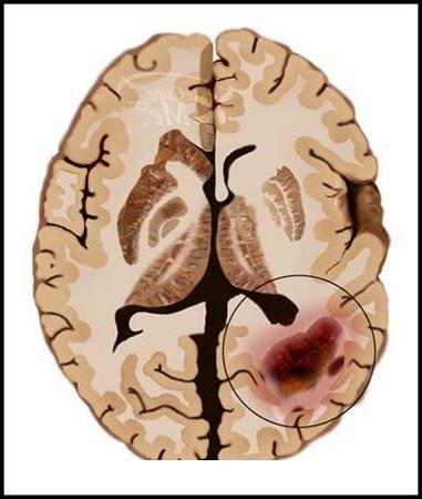 Рак головного мозга: опухоль