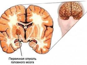 Рак головного мозга: первичная опухоль