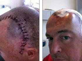 Рак головного мозга после операции