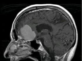 Проявление опухоли головного мозга