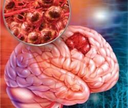 Рак головного мозга: профилактика фото