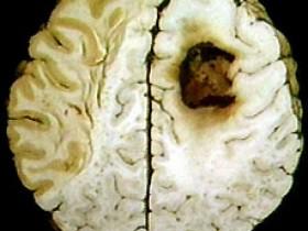 Анапластическая астроцитома головного мозга