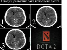Стадии развития и распространения рака головного мозга