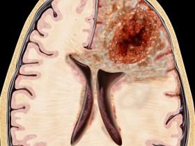 Рак головного мозга: степени
