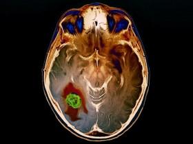 Фото рака головного мозга