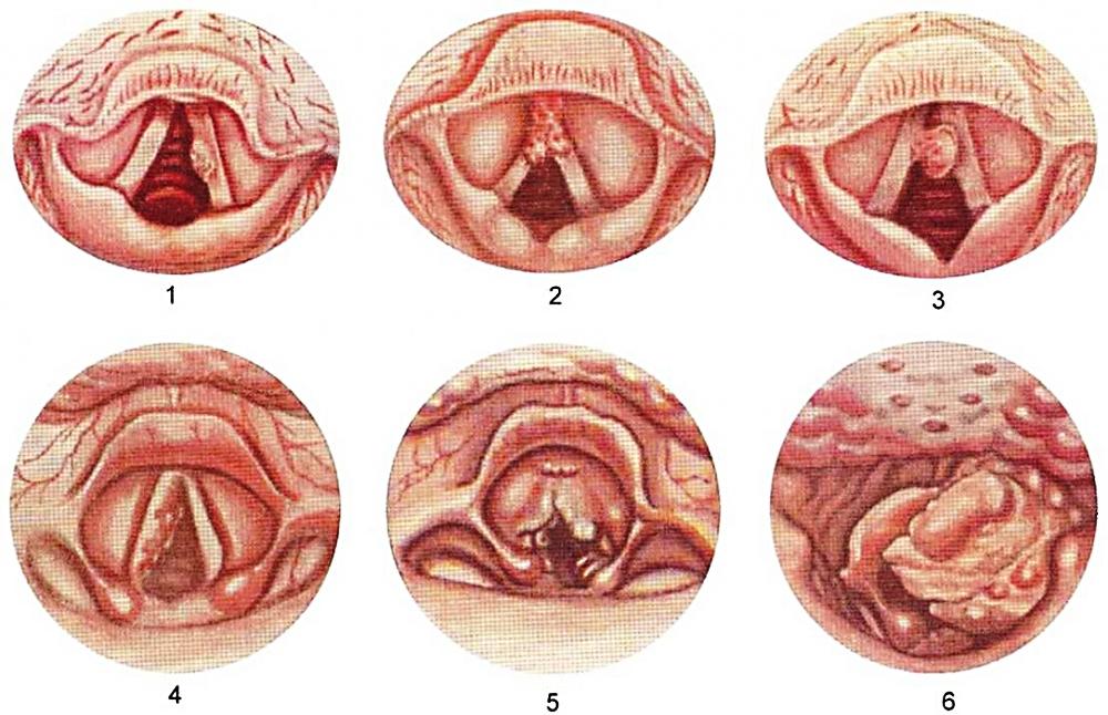 Рак горла (гортани): классификация