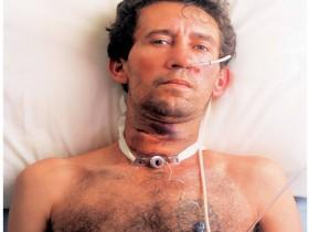 Рак горла (гортани): после операции