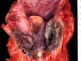 Рак горла (гортани): симптоматика