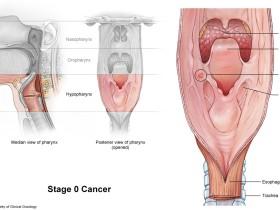 Рак горла (гортани): степени
