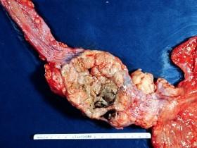 Рак горла (гортани): удаление