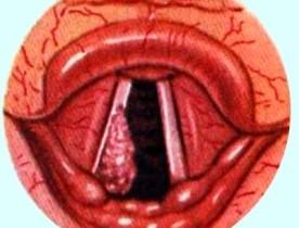 Рак горла (гортани) фото