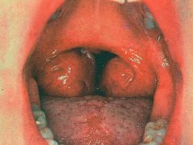 Рак горла (гортани)