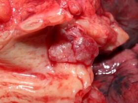 Рак легких: лечение