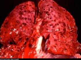 Рак легких: симптомы и признаки