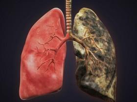 Рак легких: стадии