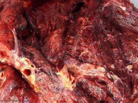 Рак легких: фото 2