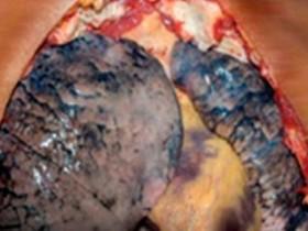 Рак легких: фото 5