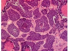 Рак легких 4 стадия