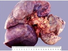 Рак легких: проявления