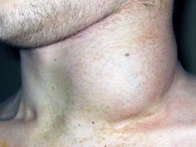 Рак лимфоузлов: симптомы